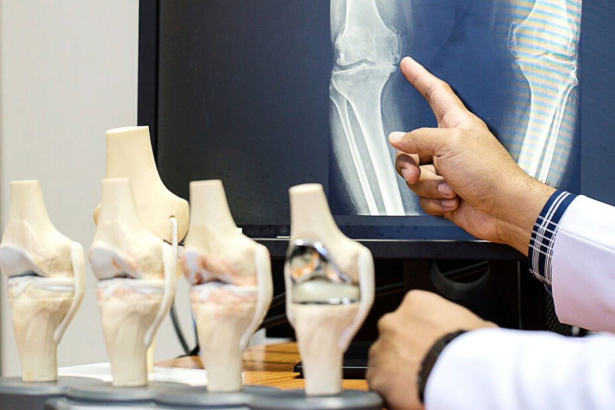 Physician pointing at potential Osteoporosis in a bone in x-rays.