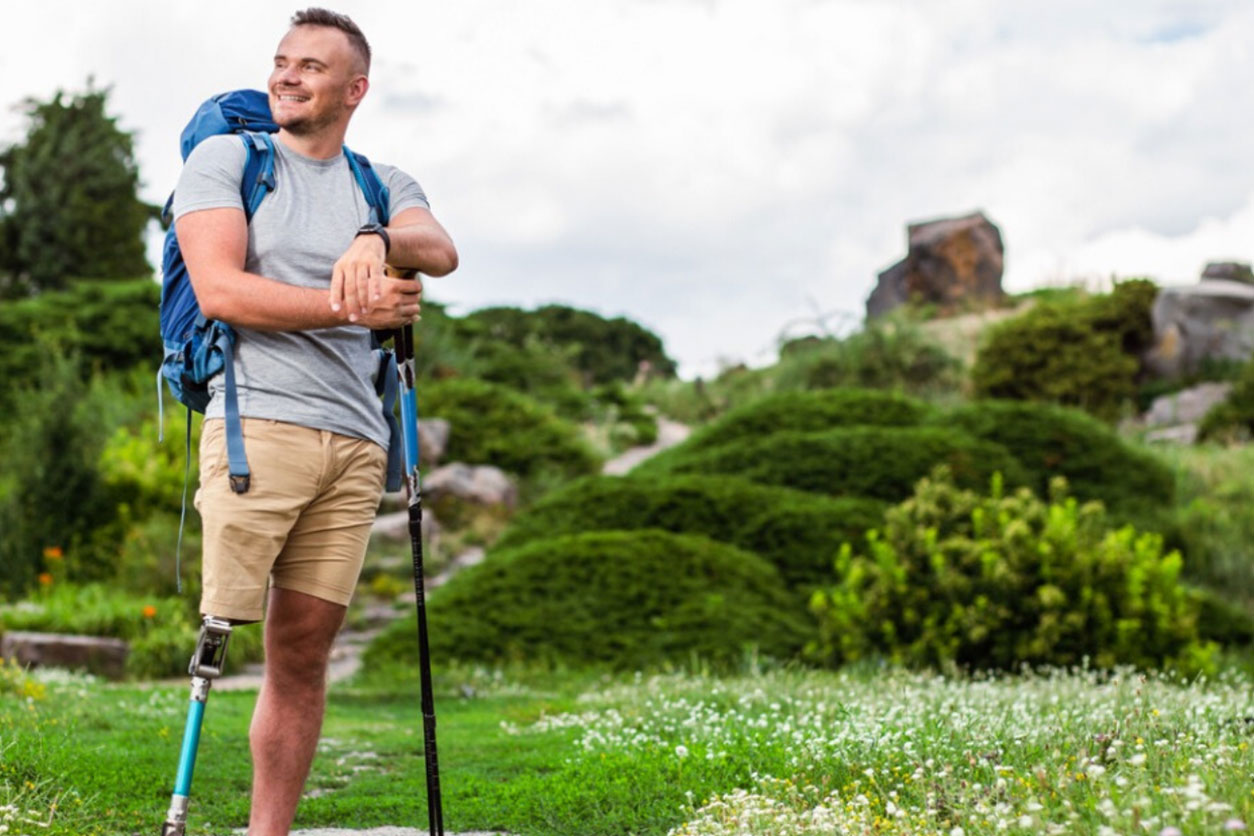 Positive young man with prosthesis standing outdoors while enjoying tourism.