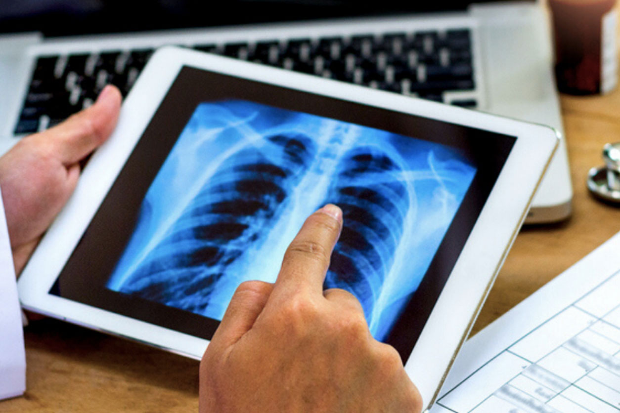 Doctor shows x-ray results to patient on a digital tablet, dealing with spinal tumor.