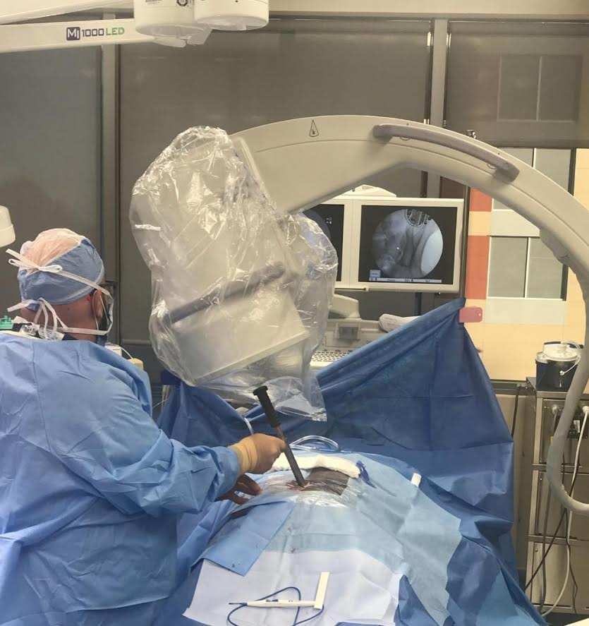 Dr. Rosenfeld performing the LinQ SI Joint Fusion treatment.